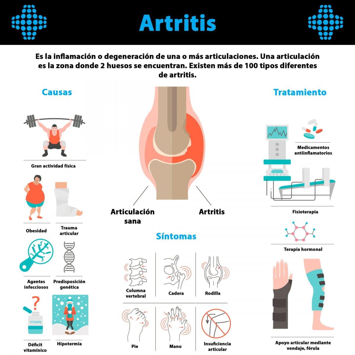 Artritis infografía